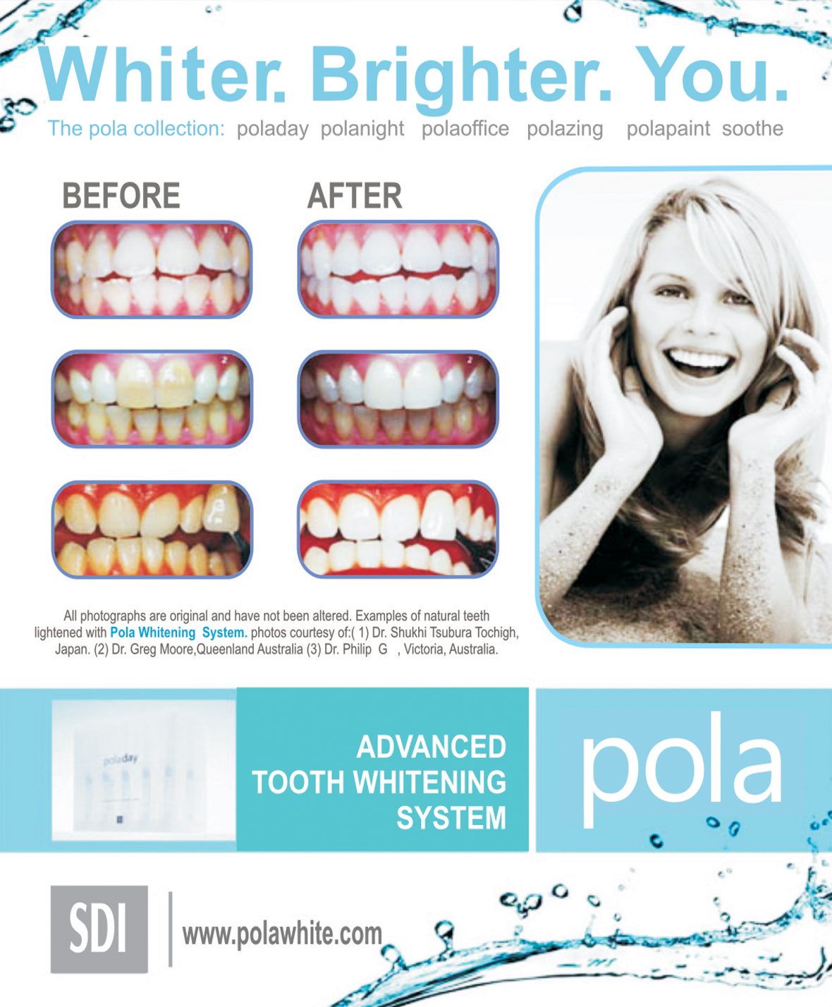 polar night teeth whitening instructions